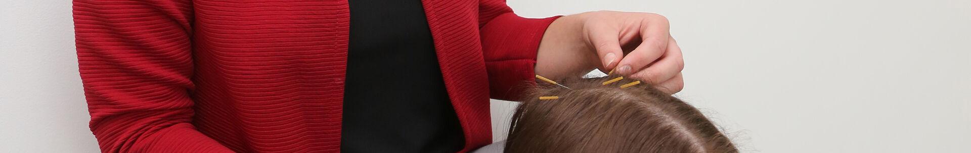 Homepage_ZSG_Akupunktur